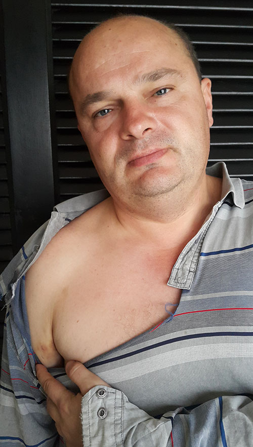 Редактор sprotiv.org Вадим Гладчук в порваной рубашке и синяком на плече